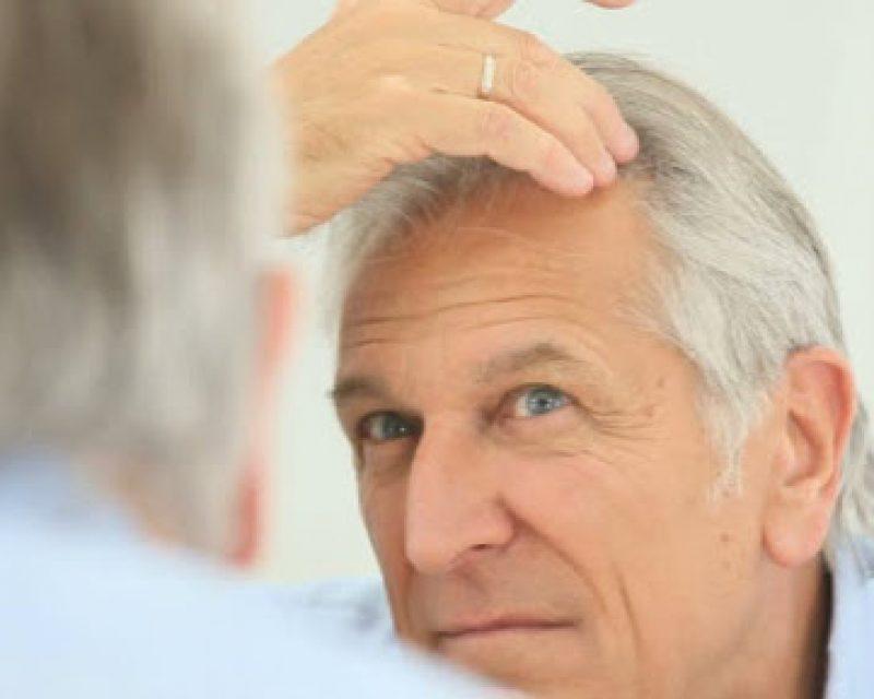Időskori hajhullás